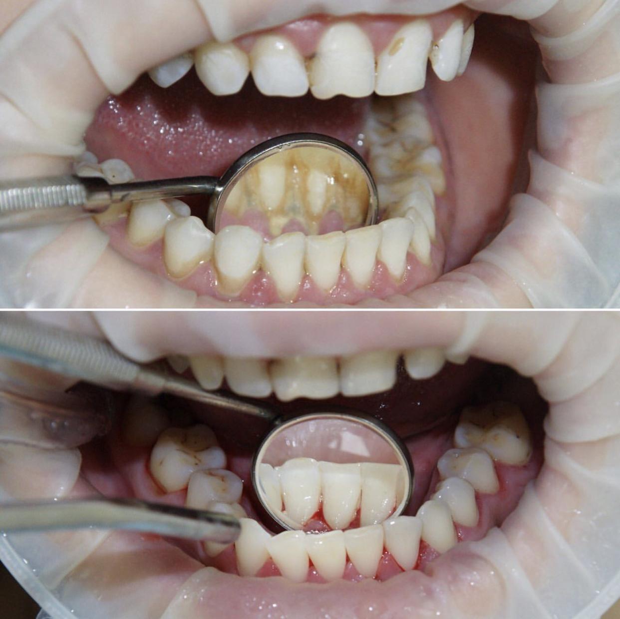 Гигиена полости рта до и сразу после процедуры